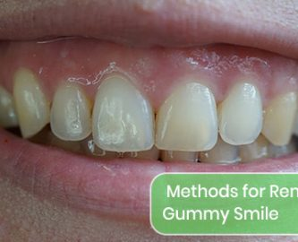 What are the methods for removing a gummy smile?